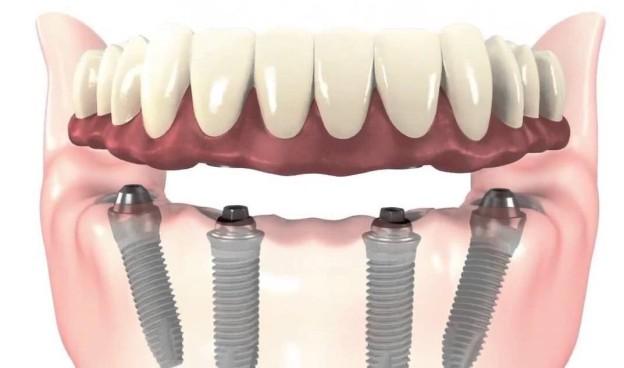 implantes_all-on-four