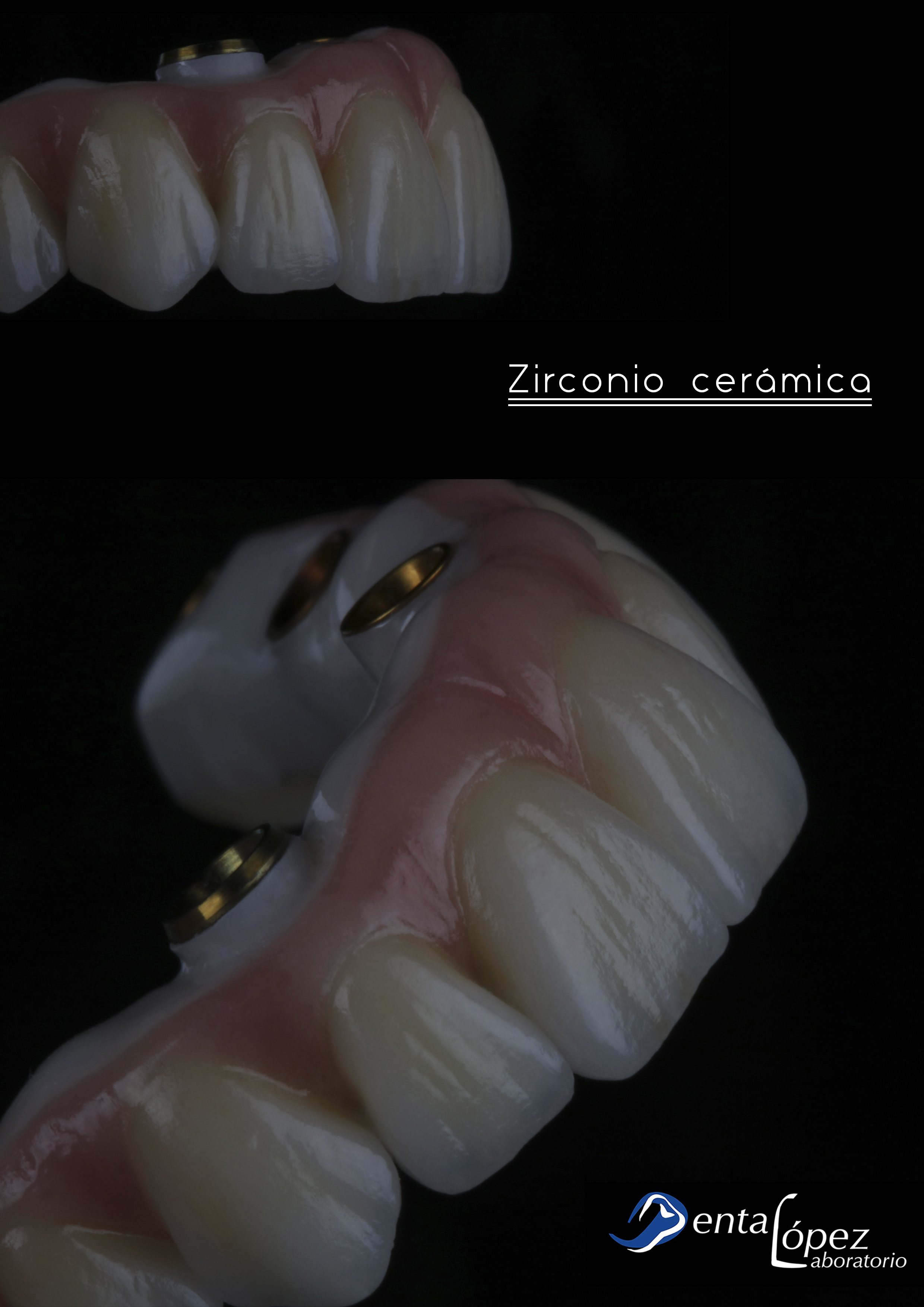 materiales_implantes_dentales